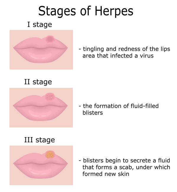 Herpes increases sex drive before outbreak