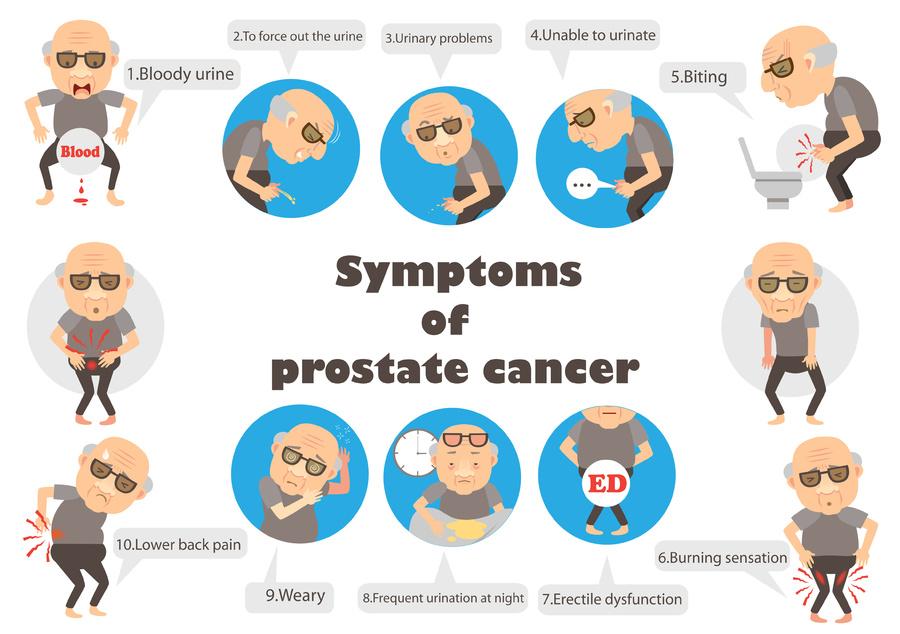Symptoms of prostate cancer.