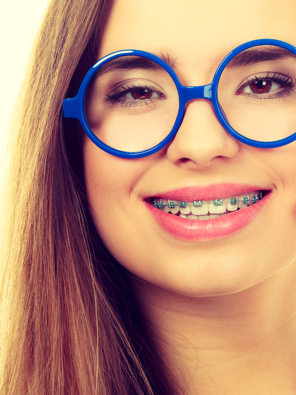 Braces can treat a tooth gap