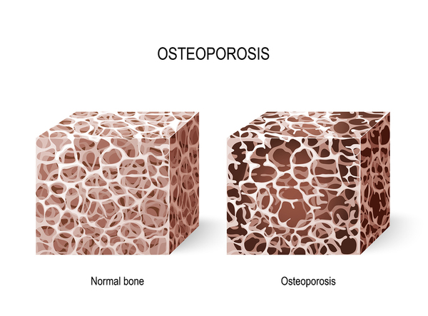 osteoporosis and dental implants