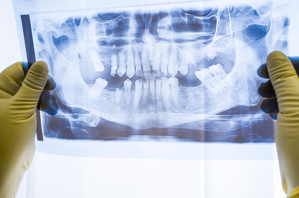 Severe damage to the joints in your jaw may require surgery.