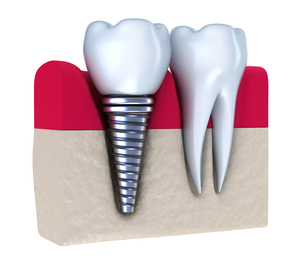 Dental implant next to a normal tooth