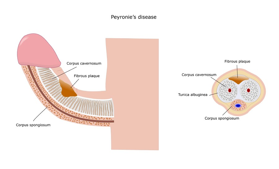 Male anatomy diagram.
