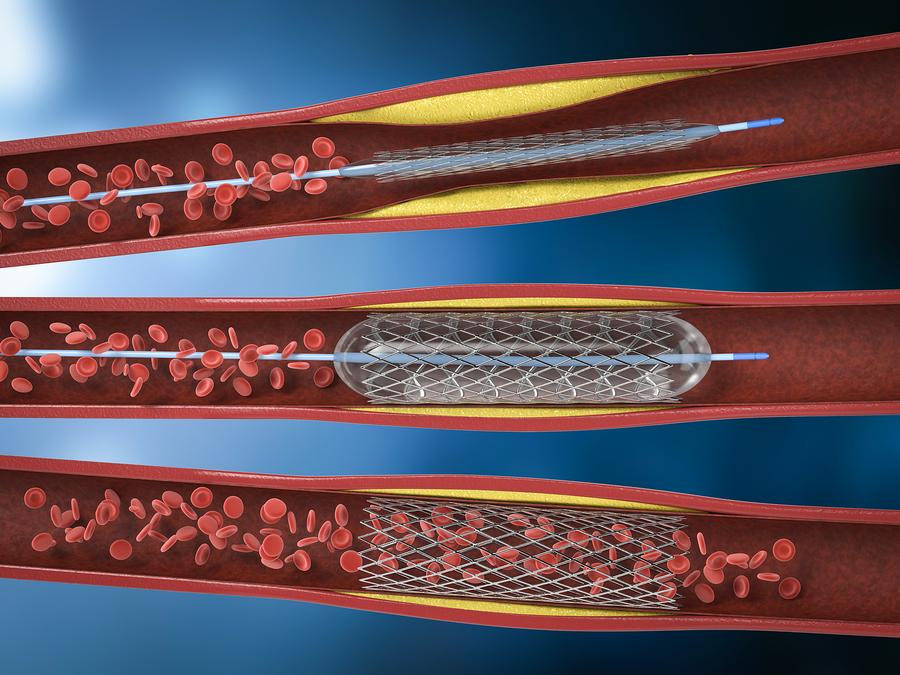 Stent angioplasty.