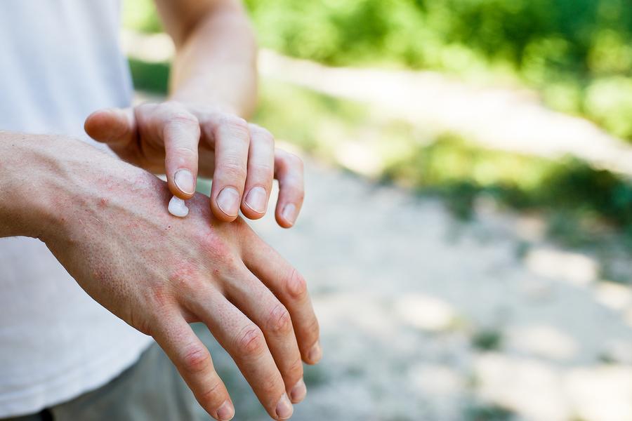 Hand cream.