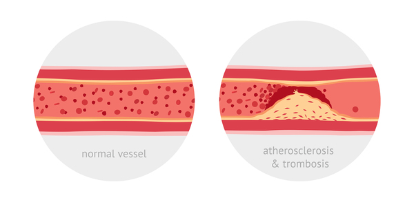 Drawing of a normal vessel and a vessel with atherosclerosis & trombosis