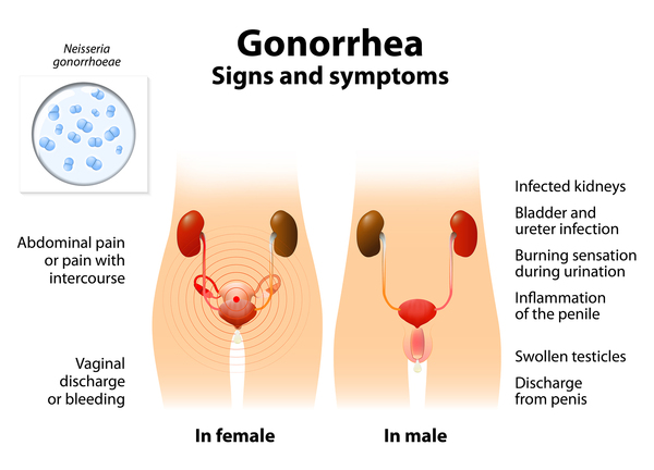The recommended best treatment for gonorrhea is an antibiotic injection combined with azithromycin tablets. You can book an appointment for the treatment at.