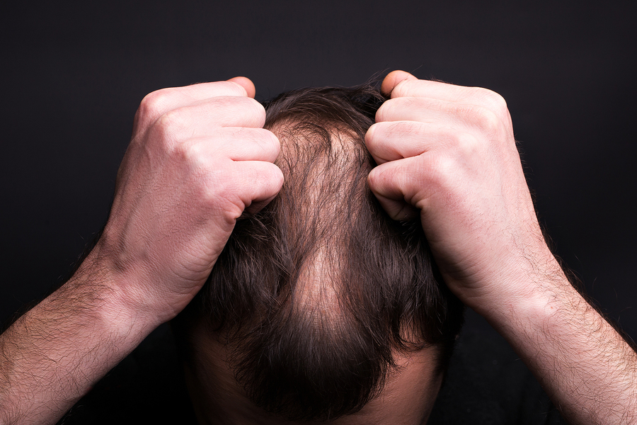 Man with thinning hair.