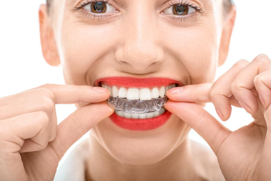 Invisalign dental braces