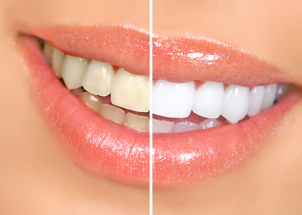 A smile makeover at Gentech Dentist can help you not only look more confident, but feel better overall.